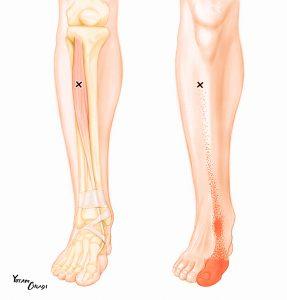 tibialis-anterior